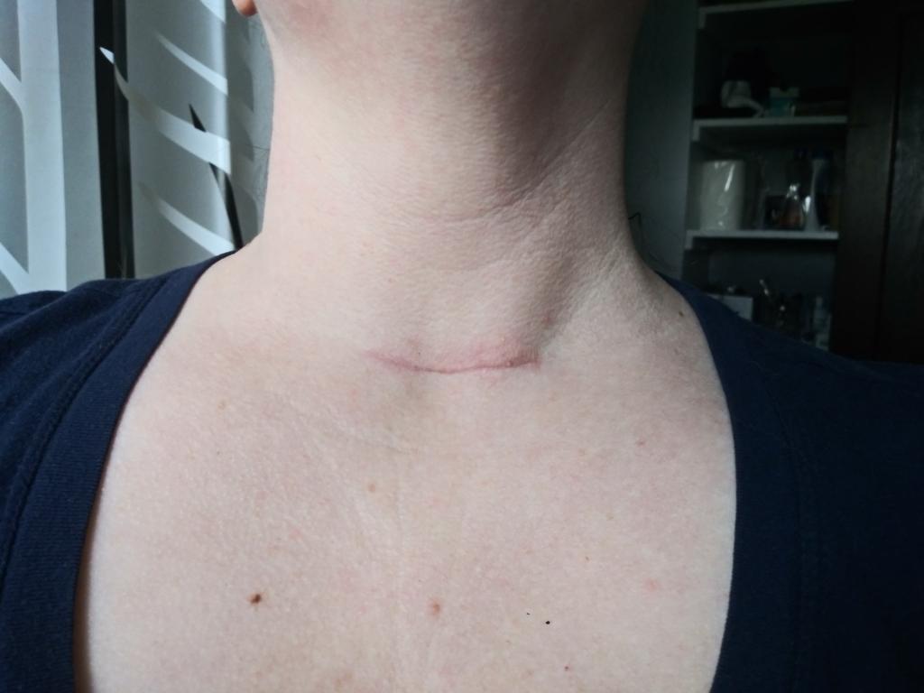 neck scar 3 months